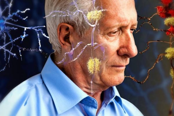 Медицинское открытие в лечении болезни Альцгеймера