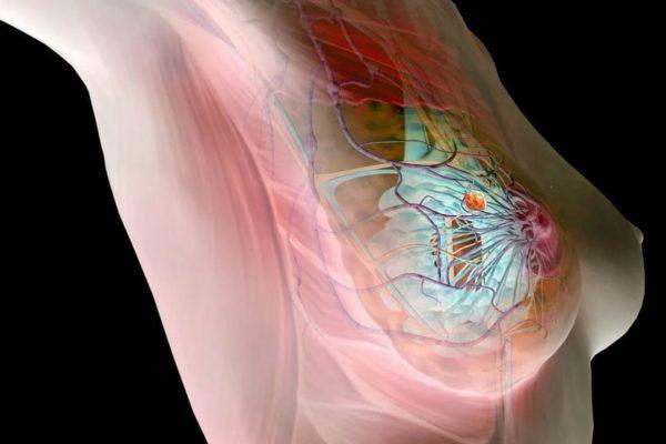 Анализ на моноциты поможет выявить раннюю стадию рака молочной железы