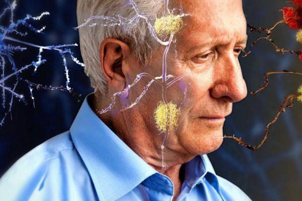 Поздняя стадия Альцгеймера обратима